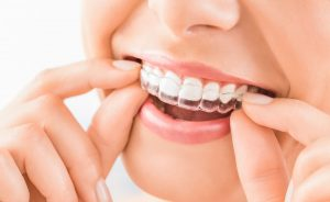Teeth Aligners Clear Braces Mechanicsville MD - St. Mary's Dental Southern Maryland