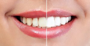 Professional Teeth Whitening Mechanicsville MD - St. Mary's Dental Southern Maryland